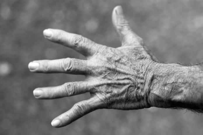 Altersflecken - Behandlung von Altersflecken - Was sind Altersflecken und stellen Altersflecken eine Gefahr dar und wie lassen sich diese behandeln