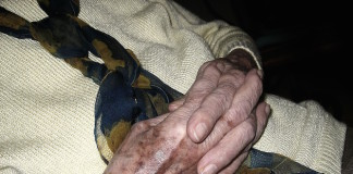 Altersflecken oder Hautkrebs - Wie man Altersflecken von Hautkrebs unterscheidet - Sind Altersflecken harmlos oder gefährlich